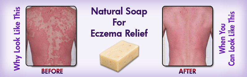 Natural Home Cures Mangosteen Acai Berry Soap For Eczema Relief